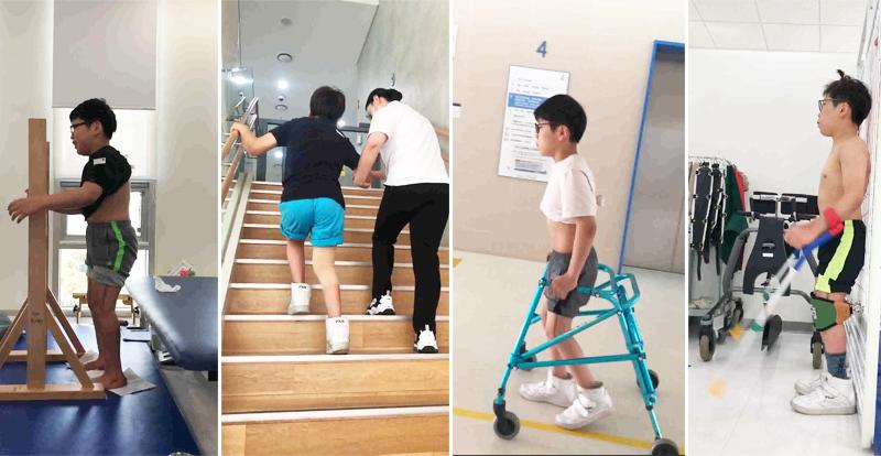 상지로 균형을 잡으며 서있는 훈련, 계단을 처음으로 오르는 모습, 팔로 워커를 끌다가 걷기 시작한 모습, 다리를 믿고 두 손을 떼보는 훈련 (왼쪽부터. 김하나 물리치료사 제공)